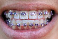 Braune Flecken durch das Tragen einer Zahnspange können leicht entfernt werden.