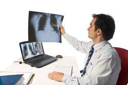 Eines der wichtigsten Organe ist die Lunge.
