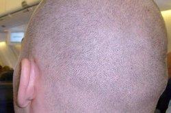Eine Glatze ist pflegeleicht und sieht schick aus.