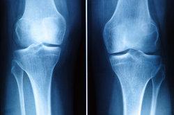 Eine Arthrose im Knie kann gestoppt werden.