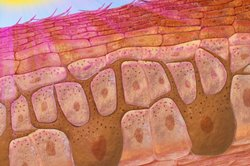 Melanin wird in den Melanozyten in der Epidermis gebildet.