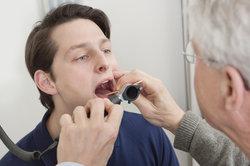 Der HNO-Arzt entfernt Tonsillensteine.