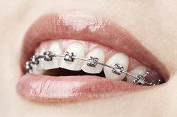 Eine Zahnspange ist nützlich, kann aber auch verunsichern.