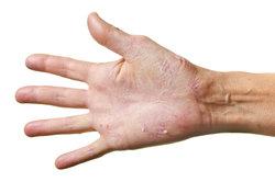 Sich schälende Handflächen können viele Ursachen haben.