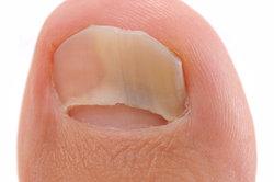 Ein Nagelpilz kann dafür sorgen, dass der Nagel sich löst.