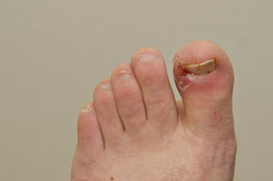 Ein eingewachsener Zehennagel kann durch die Emmert-Plastik repariert werden.