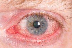 Geweitete Blutgefäße lassen das Auge rot scheinen.