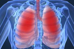 Die Rippen umschließen die Lungen und können bei einer Entzündung schmerzen.