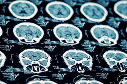 Bei einem Schlaganfall ist das Gehirn betroffen.