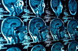 Das Nervensystem bietet viele Ansatzpunkte für diverse Erkrankungen.