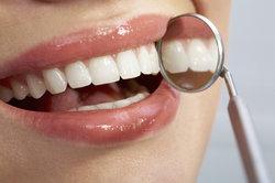An Weisheitszähnen kann es leicht zu einer Zahnfleischentzündung kommen.