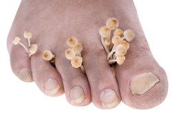 Fußpilz ist sehr ansteckend.
