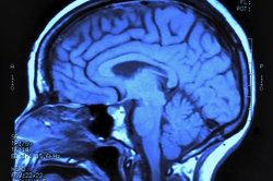 Das verlängerte Rückenmark ist Teil des Hirnstamms.