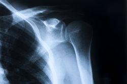 Sehnen kann man auf einem Röntgenbild kaum erkennen.