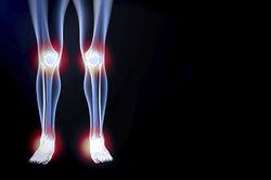 Eine Verletzung im Knie kann zu einem Kniegelenkserguss führen.