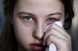 Gerötete Augen treten bei der Bindehautentzündung auf.