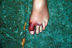 Verstaucht oder gebrochen? - Zehverletzungen sind schmerzhaft.