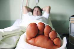 Eine Mittelfußfraktur ist schmerzhaft und erfordert eine gute Therapie.