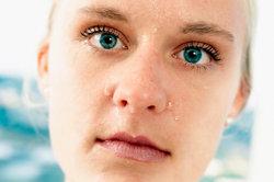 Ist der Tränenkanal verstopft, tränen die Augen.