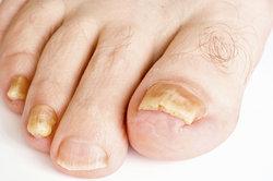 Nagepilz lässt die Nägel gelb und höckerig werden.