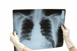 Rippenbrüche kann man auf dem Röntgenbild nicht immer erkennen.