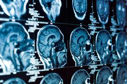 Mehrere Bereiche des Gehirns werden Kortex genannt.