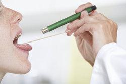 Zeigen sich hier schon die zerklüfteten Mandeln einer chronischen Tonsillitis?