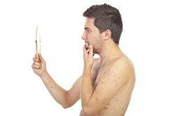 Die Gürtelrose kann im Gesicht auftreten und heißt dann Gesichtsrose.