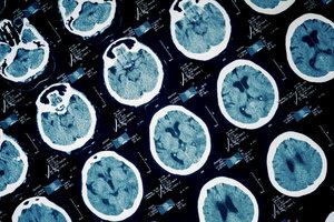 Ein Schlaganfall findet im Gehirn statt.