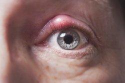 Kokken können eine Etzündung des Auges verursachen.