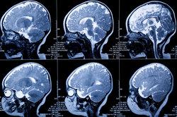 Auf einem CT kann der Arzt auch Zysten erkennen.