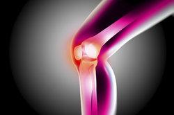Eine Zyste im Knie kann sehr schmerzhaft sein.