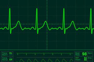 Ein EKG deckt Erregungsleitungsstörungen des Herzens auf.