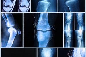 Verletzungen im Knie können mit der Chondroplastik behoben werden.