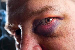 Ein blaues Auge ist schmerzhaft.