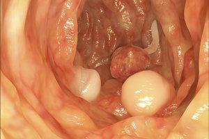 So sehen Wucherungen der Darmschleimhaut aus.