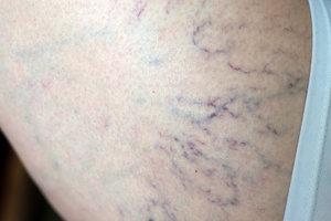 Krampfadern an den Beinen sind nicht schön.