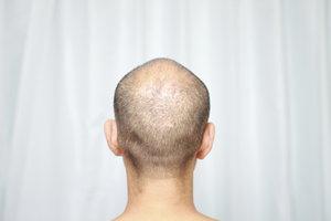 Der Atlasnerv befindet sich im hinteren Teil des Kopfes.