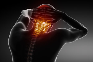 Durch eine Steilstellung der HWS kann es zu starken Schmerzen kommen.