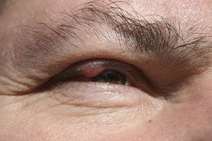 Zysten im Augenlid können zu Einschränkungen des Sehfeldes führen.