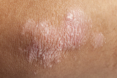 Schuppenflechte tritt oft an den Streckseiten der Arme auf.