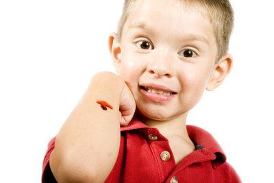 Auch kleine Verletzungen sollten richtig versorgt werden.