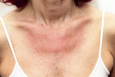 Bei Sonnenallergie braucht die Haut speziellen Schutz.
