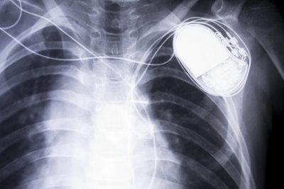 Mit einem Herzschrittmacher werden Herzprobleme therapiert.