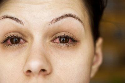 Eine Bindehautentzündung macht sich durch gerötete Augen bemerkbar.
