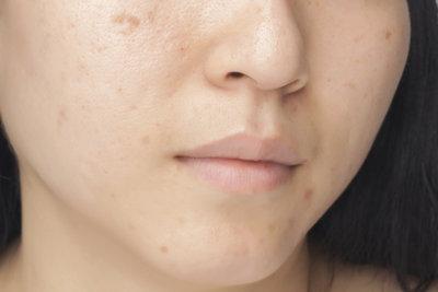 Hautpflegeprodukte können Pickel und Mitesser verhindern.