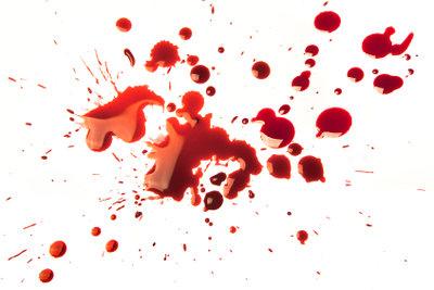 Blutflecken auf Kleidungsstücken müssen kein Drama sein, sie lassen sich mit Hausmitteln entfernen.