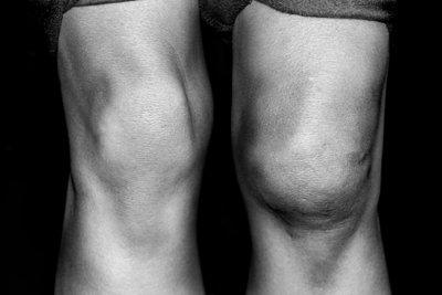 Ohne erste Hilfe kann das Rausspringen der Kniescheibe zu starken Schwellungen führen.
