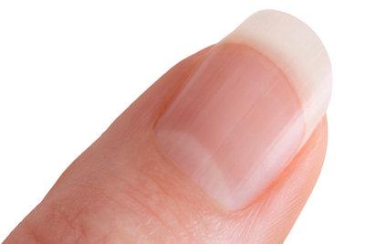 Hilfe bei zu dünnen Nägeln.