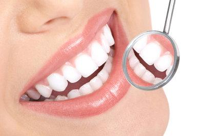 Schöne Zähne - mit einer Zahnzusatzversicherung von der AOK kein Problem.
